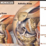 meniscus transplantation for arthritis