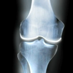 biologic knee replacement