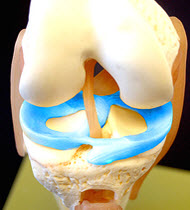 Meniscus Transplantation Arthritis